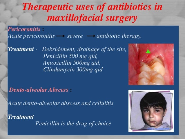 1 Antibiotics and analgesics in pediatric dentistry