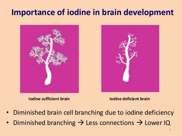 Iodine and the Brain