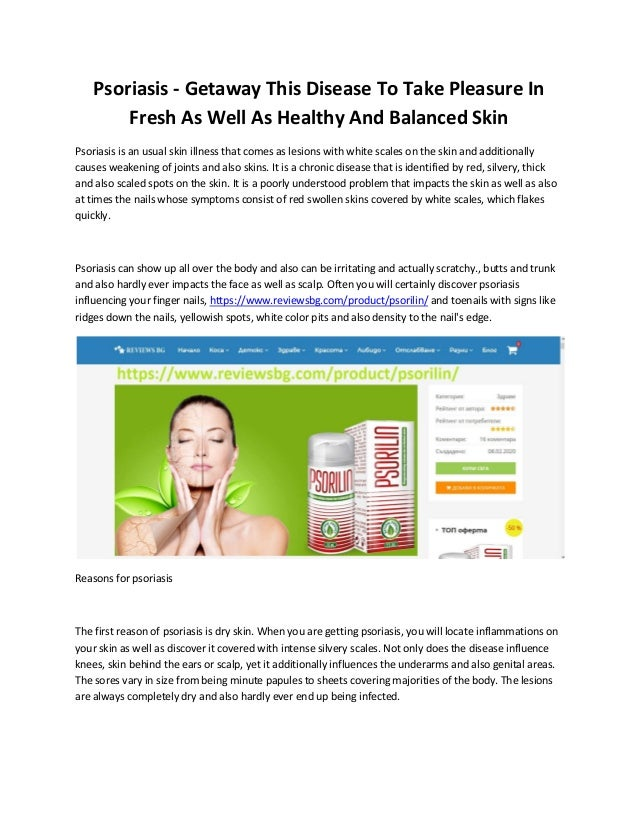 Psoriasis - Getaway This Disease To Take Pleasure In Fresh As Well As Healthy And Balanced Skin Psoriasis is an usual skin...