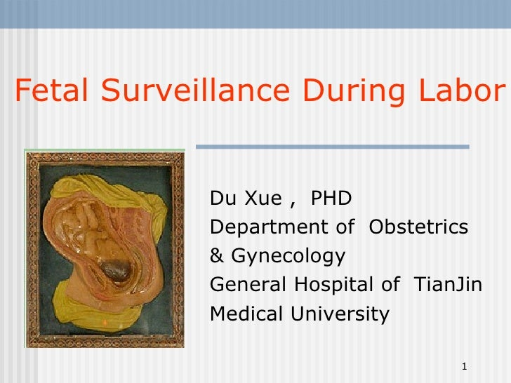 Fetal Surveillance During Labor Du Xue ,  PHD Department of  Obstetrics  & Gynecology  General Hospital of  TianJin Medica...