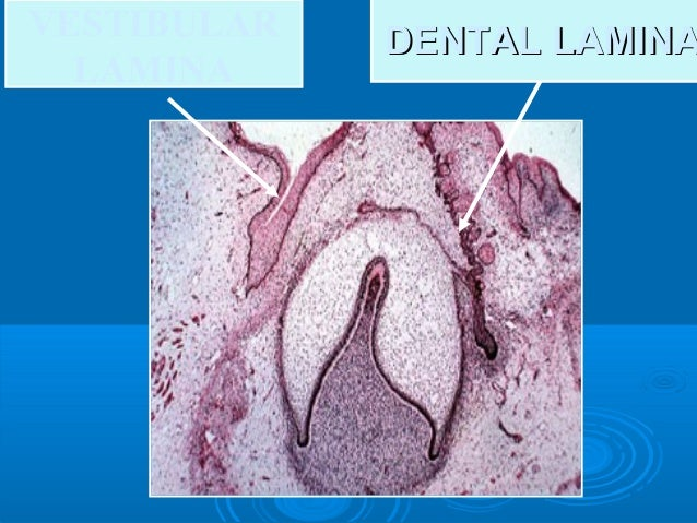 """Oral Histology """"tooth development"""""""