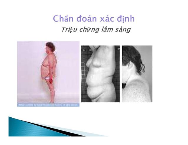  Thay đổi về da. Các vết rạn da đỏ tím ở ngực, đùi, bụng. Trứng cá và tăng tiết bã nhờn ở mặt, lưng.