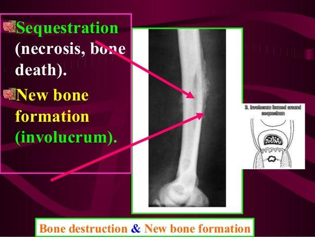 Strep infection in bone