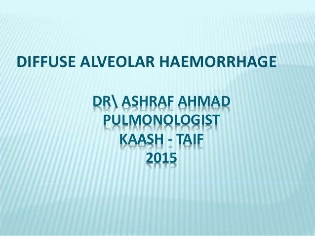 DR ASHRAF AHMAD PULMONOLOGIST KAASH - TAIF 2015 DIFFUSE ALVEOLAR HAEMORRHAGE