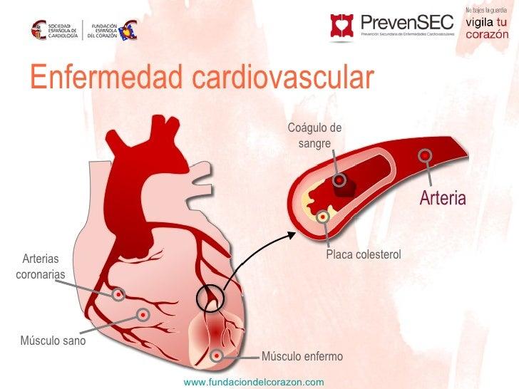 be7eef8630124 Enfermedad cardiovascular ...