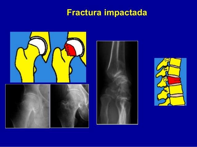 1 fracturas generalidades