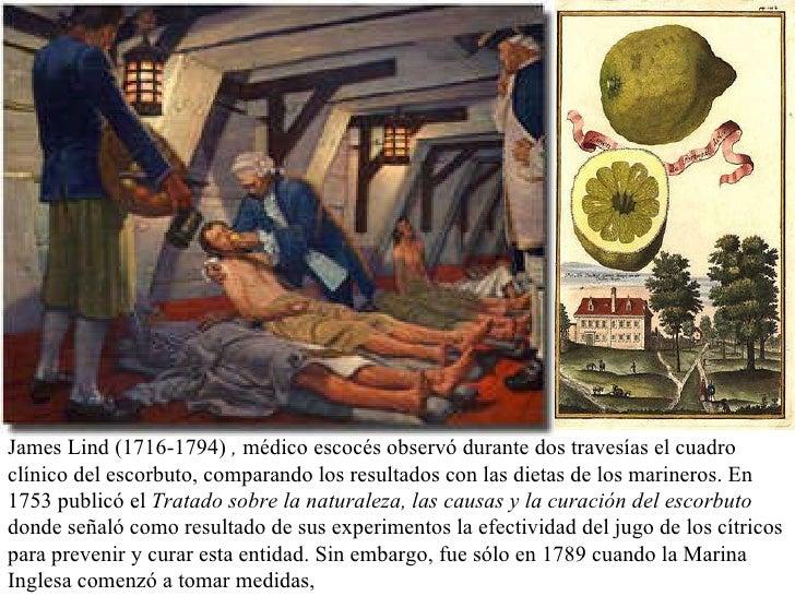 James Lind   (1716-1794)  ,  médico escocés observó durante dos travesías el cuadro clínico del escorbuto, comparando los ...