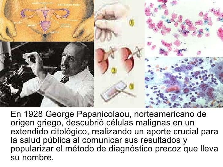 <ul><li>En 1928 George Papanicolaou, norteamericano de origen griego, descubrió células malignas en un extendido citológic...