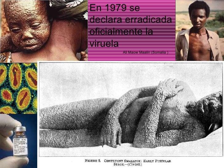 En 1979 se declara erradicada oficialmente la viruela Ali Maow Maalin (Somalia )