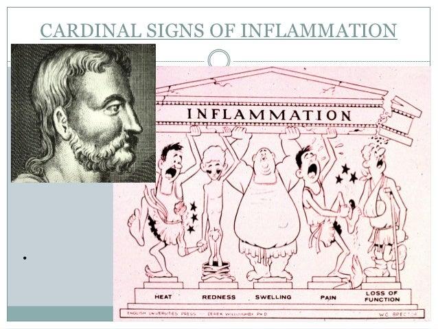 CARDINAL SIGNS OF INFLAMMATION•