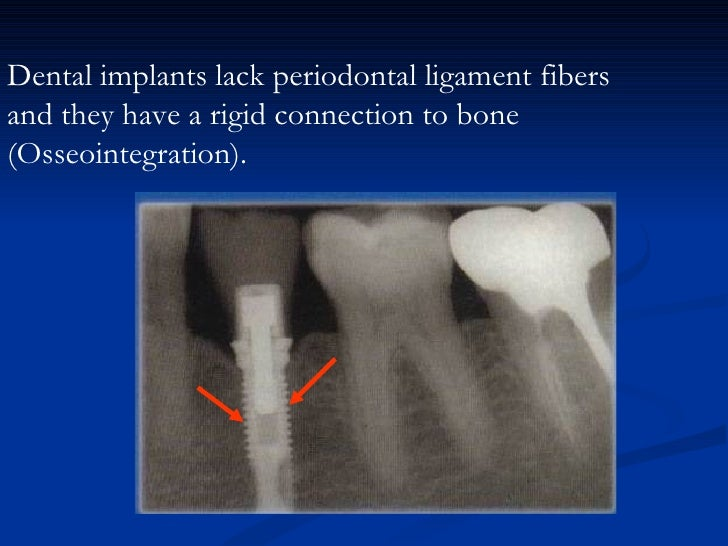 3- Nutritive:The blood vessels in the periodontal ligament providenutrient supply required by the cells of the ligament an...