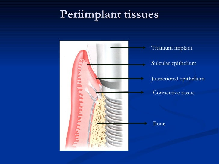 5- ProtectiveThe protective function of the periodontal ligament is achieved by:a- The principal fibers.b- The blood vesse...