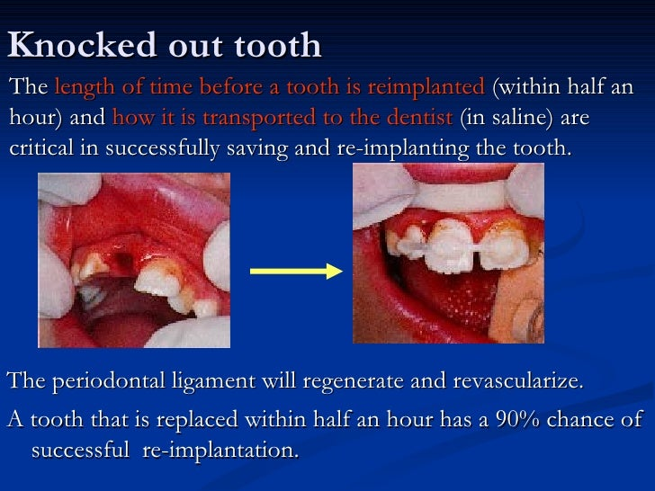 Knocked out toothThe length of time before a tooth is reimplanted (within half anhour) and how it is transported to the de...