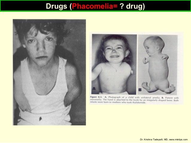Drugs (Phacomelia= ? drug) Drugs (Phacomelia= ? drug)  Dr. Krishna Tadepalli, MD, www.mletips.com