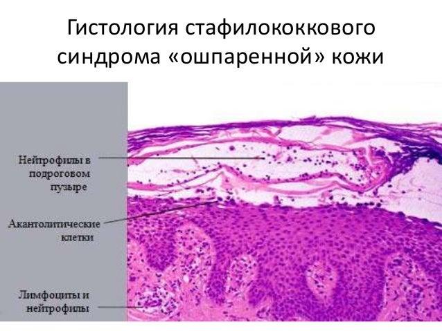 кожные болезни в мкб 10 общий обзор