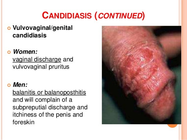 Labia itchy masturbation