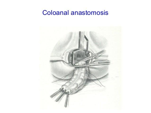 Colo anal anastomosis