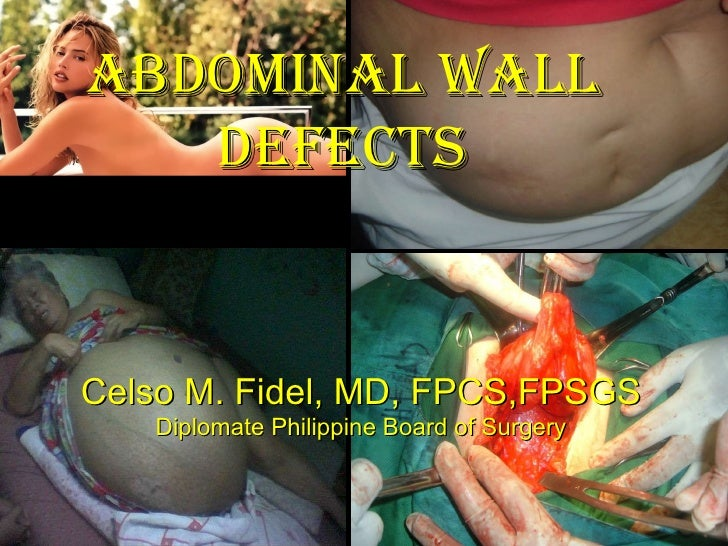 ABDOMINAL WALL DEFECTS Celso M. Fidel, MD, FPCS,FPSGS Diplomate Philippine Board of Surgery