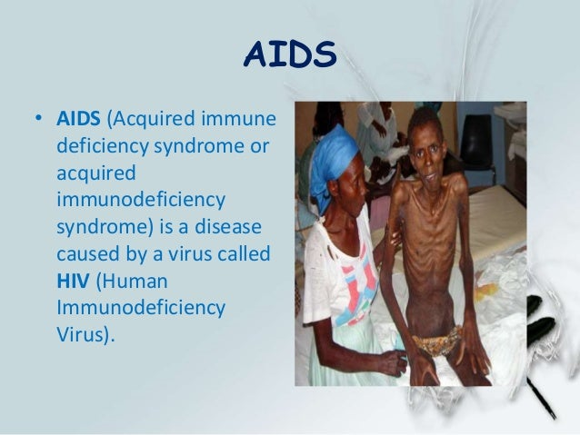 the dangers of the acquired immune deficiency syndrome Acquired immune deficiency syndrome (aids): literature, geographical origins  and global patterns show all authors mr smallman-raynor mr smallman-.