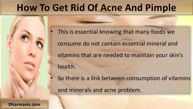 how to get rid of acne and pimple on face