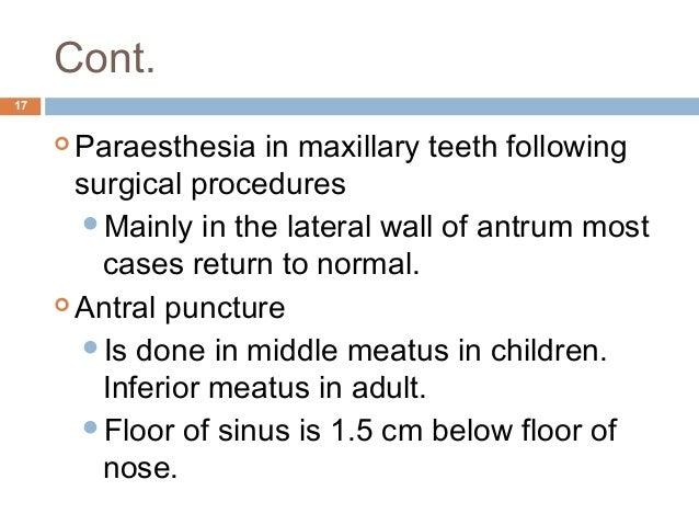 10 maxillary sinus Inferior Meatus Puncture