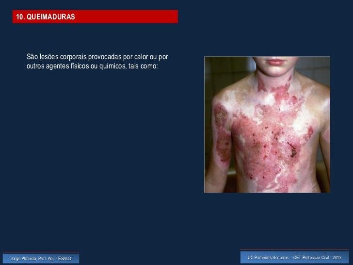 10. QUEIMADURAS        São lesões corporais provocadas por calor ou por        outros agentes físicos ou químicos, tais co...