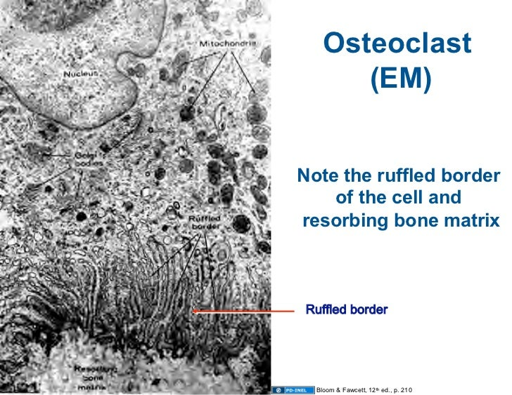 10.13.08: Histology - Bone Formation and Remodeling Ruffled Border In Osteoclasts