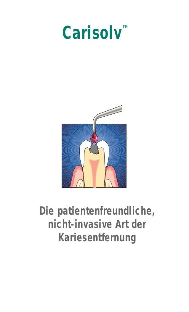 Carisolv™ Die patientenfreundliche, nicht-invasive Art der Kariesentfernung
