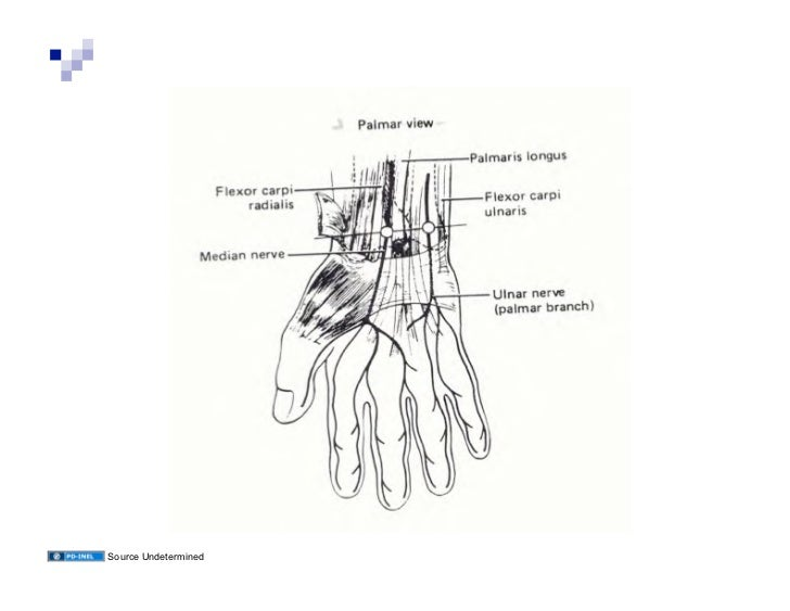 10.17.08: Clinical Anatomy Cases Involving the Upper Extremity