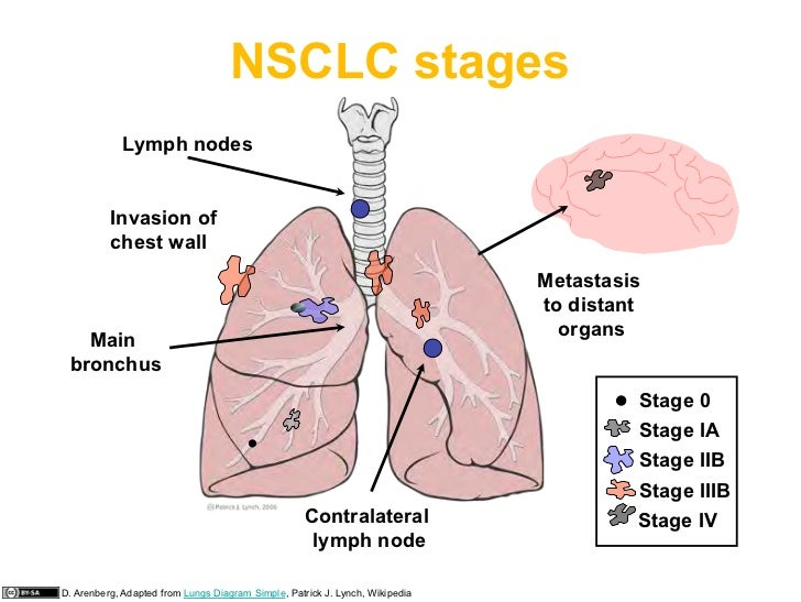 101810 lung cancer available 23 nsclc stages lymph nodes invasion of chest ccuart Images