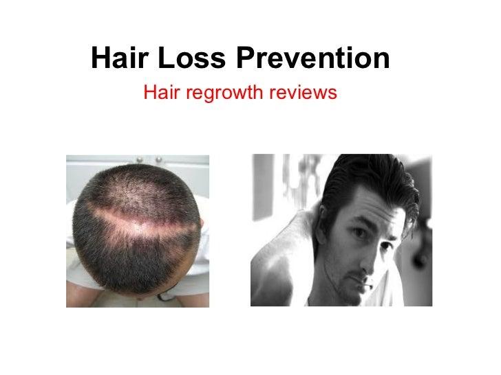 Hair Loss Prevention Hair regrowth reviews
