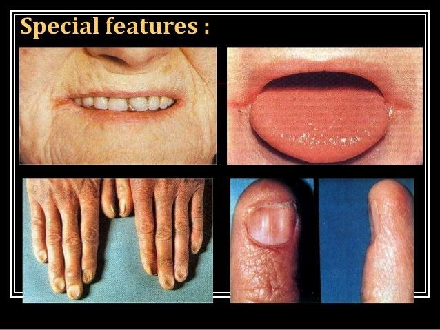 ANAEMIA B12 Deficiency Nails