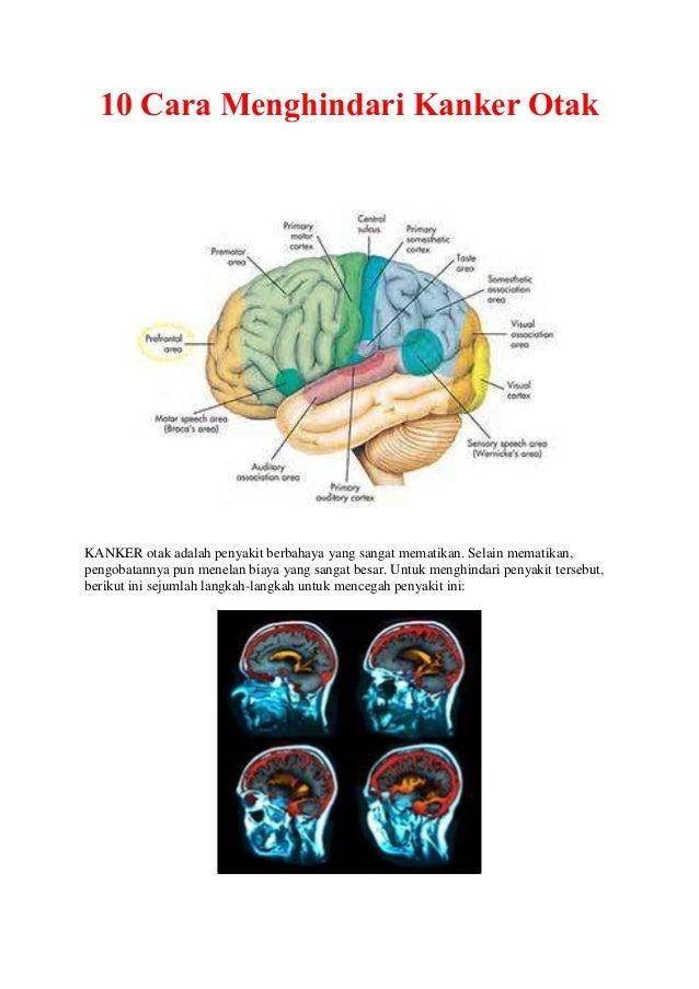 10 cara menghindari kanker otak