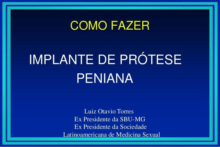 COMO FAZER <br />IMPLANTE DE PRÓTESE  <br />             PENIANA<br />             Luiz Otavio Torres<br />       Ex Presi...