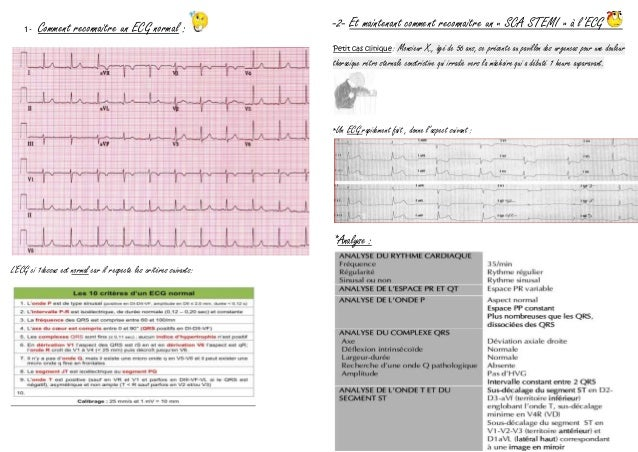 1- Comment reconnaitre un ECG normal : L'ECG ci 1dessus est normal car il respecte les critères suivants: -2- Et maintenan...