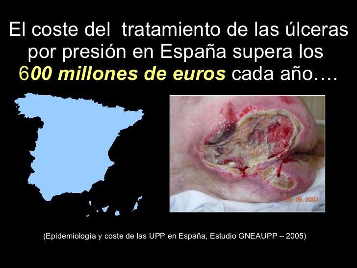 STOP ULCERAS POR PRESION