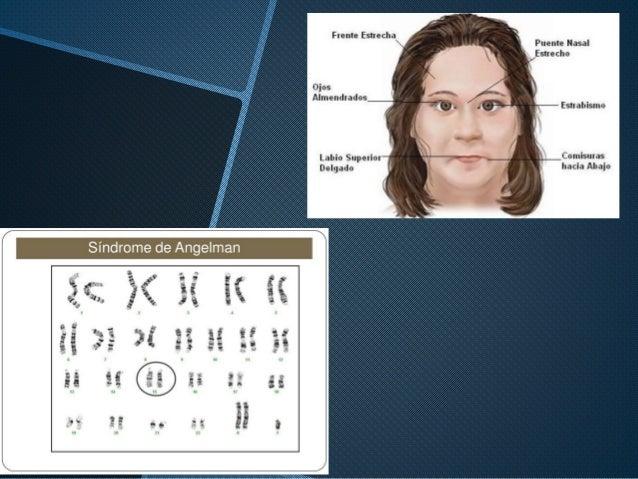 Síndrome de Angelman - Investigación escolar Slide 3