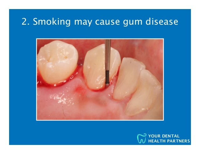 10 Reasons Your Dentist and the Surgeon General Want You to Quit Smoking Slide 3