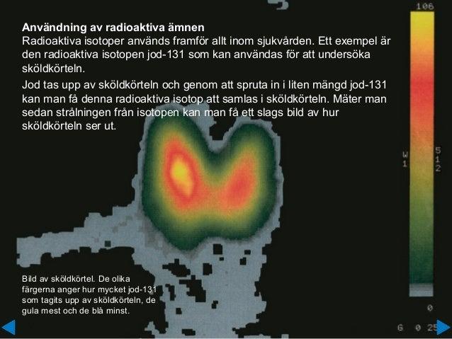 Användning av radioaktiva ämnen Radioaktiva isotoper används framför allt inom sjukvården. Ett exempel är den radioaktiva ...