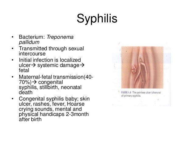 Syphyllis in the vagina