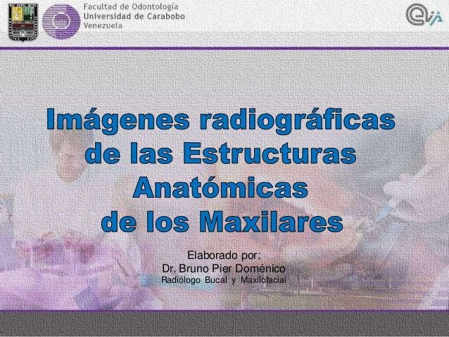 Elaborado por: Dr. Bruno Pier Doménico Radiólogo Bucal y Maxilofacial