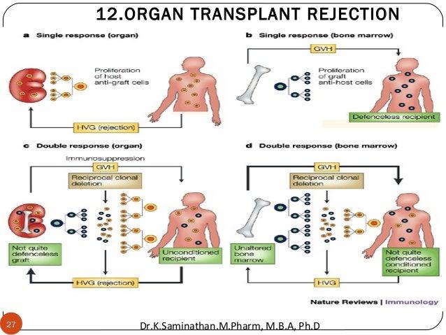 27 12.ORGAN TRANSPLANT REJECTION Dr.K.Saminathan.M.Pharm, M.B.A, Ph.D