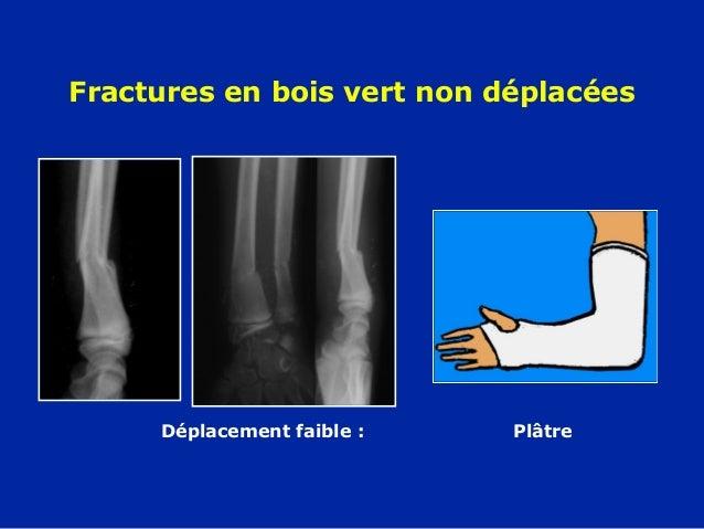 11 avant bras  fractures