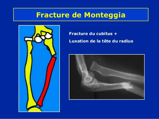 11 avant -bras - fractures