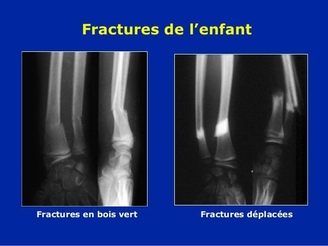 11 avant bras  fractures ~ Fracture Bois Vert Poignet