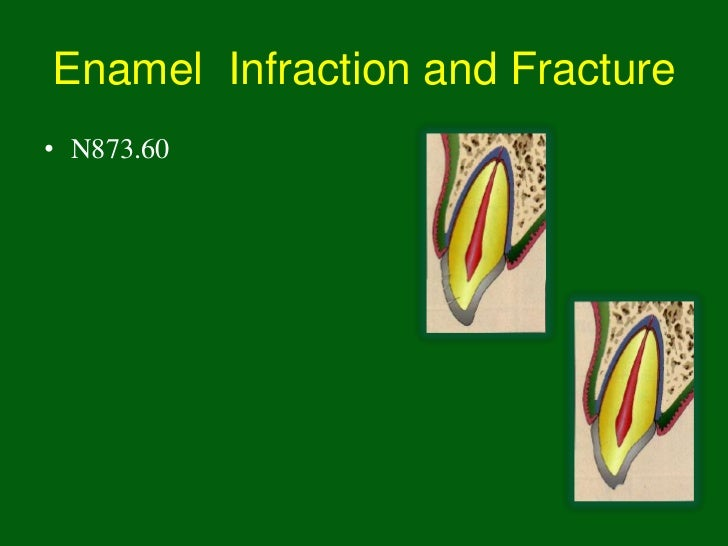 Enamel Infraction and Fracture• N873.60