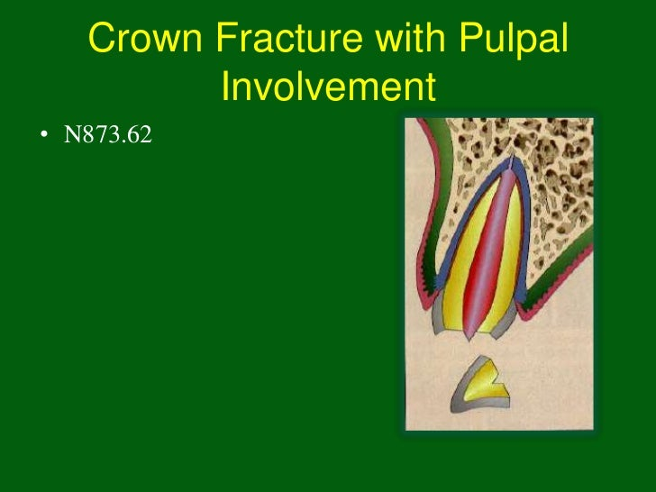 Crown Fracture with Pulpal         Involvement• N873.62