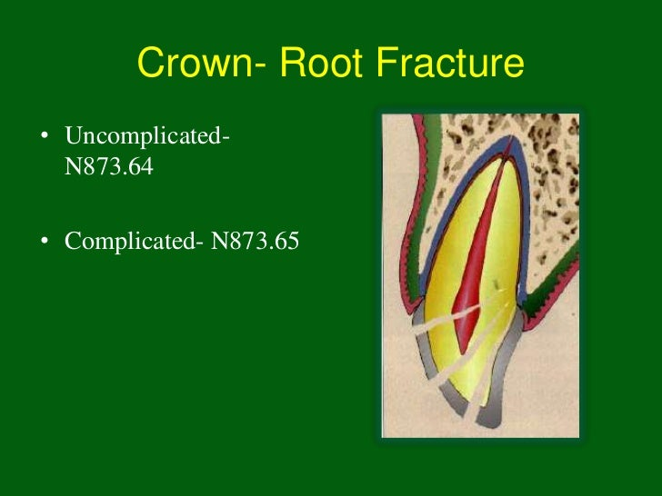 Crown- Root Fracture• Uncomplicated-  N873.64• Complicated- N873.65