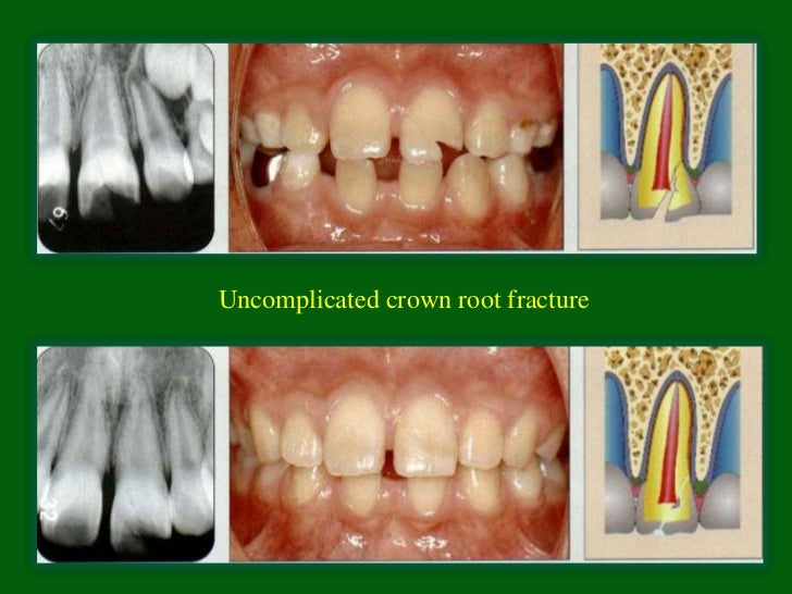 Uncomplicated crown root fracture