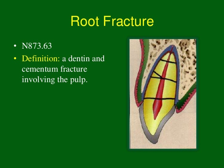 Root Fracture• N873.63• Definition: a dentin and  cementum fracture  involving the pulp.
